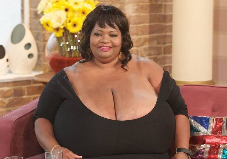 World's largest natural breasts: Annie Hawkins-Turner